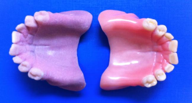 3D Printed Denture